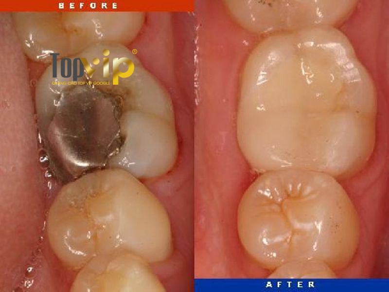 Hình ảnh khách hàng trước và sau hàn trám răng