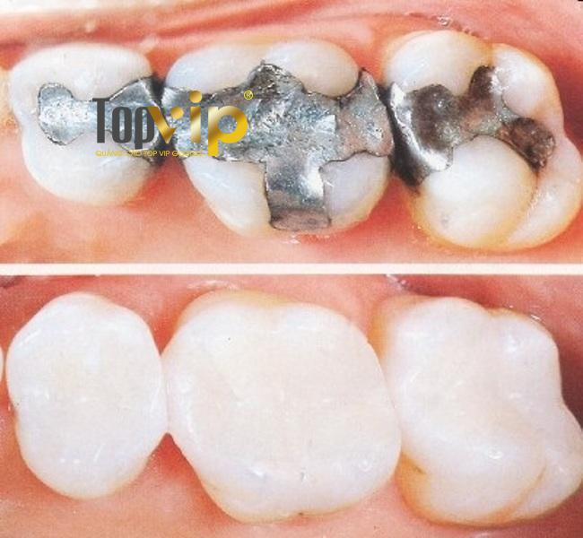 Kết quả hàn trám răng tại Nha khoa Lạc Việt