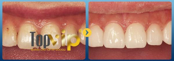 Kết quả hàn trám răng tại Răng hàm mặt quốc tế Sài Gòn